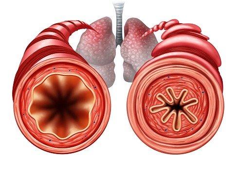 vías respiratorias inflamadas